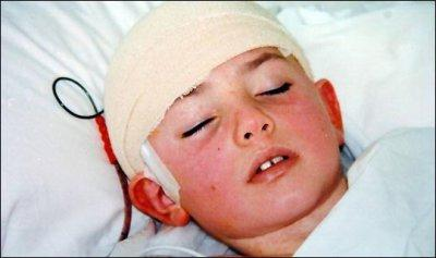 гнойный менингит у детей последствия