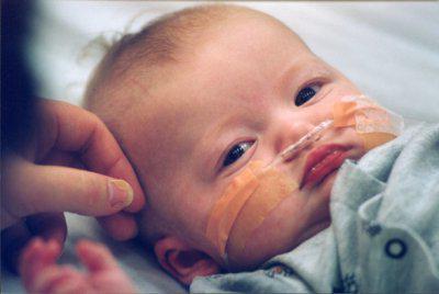 отек мозга у новорожденных