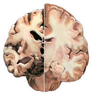 что такое изменение вещества мозга дистрофического характера