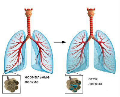 Острый отек легких - причина смерти. Симптомы отека легких и терапия
