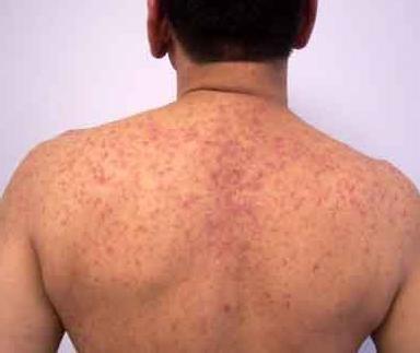 Эксфолиативный дерматит у взрослых