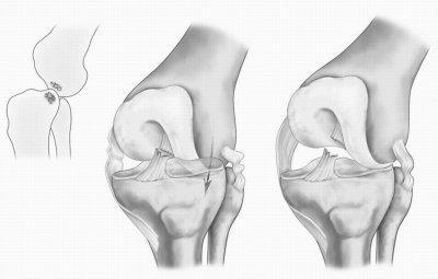Ушиб коленной чашечки