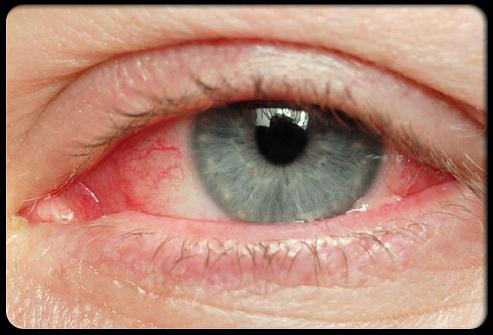 Красные белки глаз симптом каких болезней