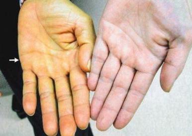 какие симптомы бывают при аллергии
