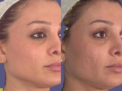 Шрамы на лице - как с ними бороться?