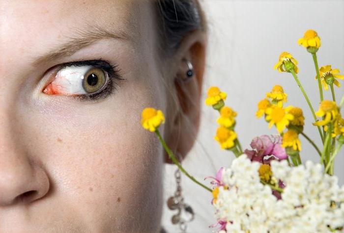 лечение весенней аллергии у взрослых