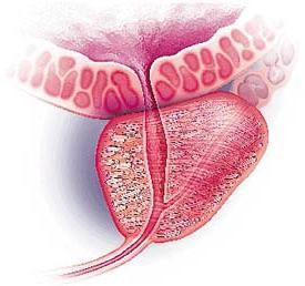 Фиброз аденомы предстательной железы