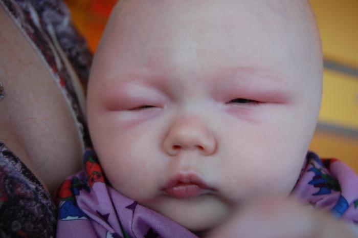 правила ухода у новорожденного припухлость переносицы полотна подробнее