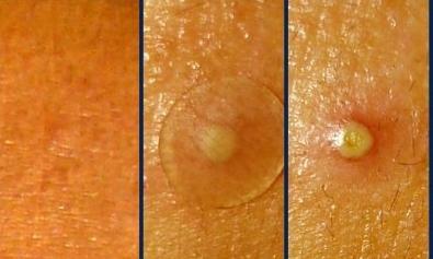 Лечение суставов морской солью на пальцах