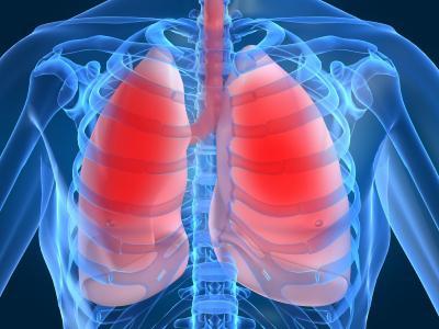 Лечение воспаления легких.