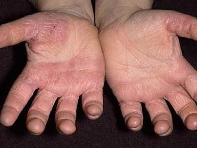 почему на ногах появляются красные точки
