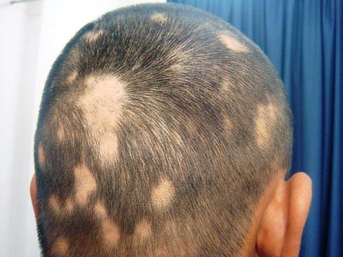 Алопеция у детей период выпадения волос