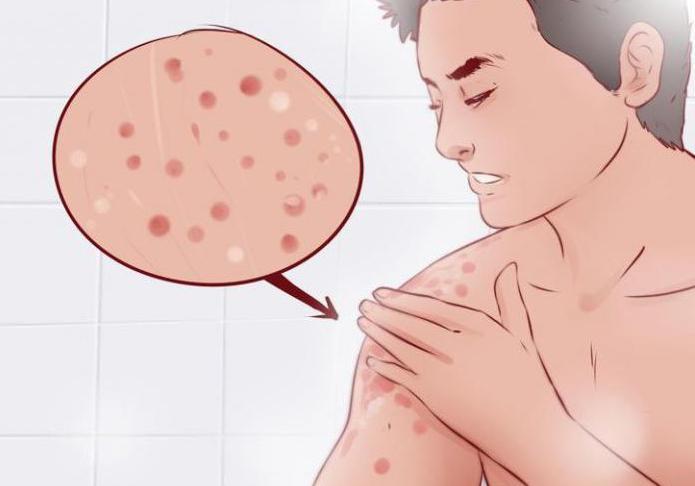 Можно ли ребенку в баню при атопическом дерматите