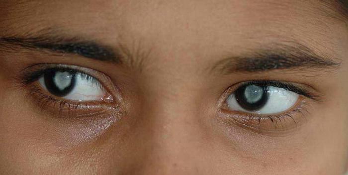 Квинакс капли для глаз