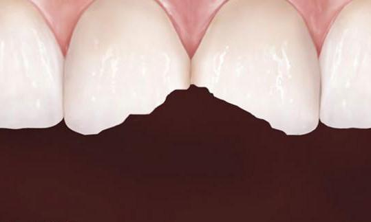зуб крошится что делать