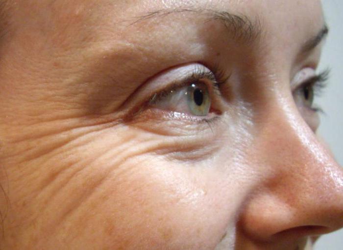Ретиноловая мазь для лица