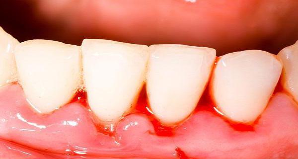чтобы не шатались зубы чем можно укрепить десны