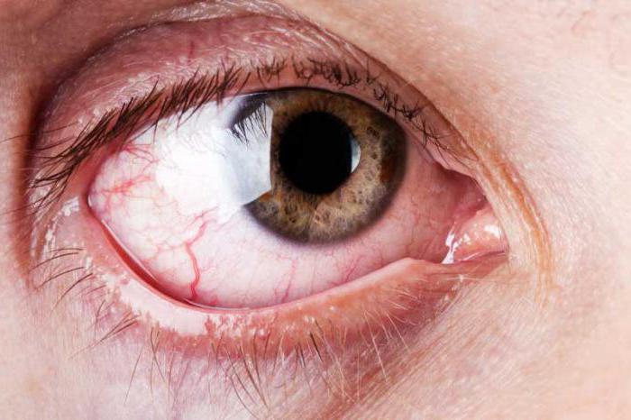 глазные капли от паразитов