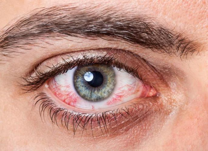 Аллергия глаз лечение
