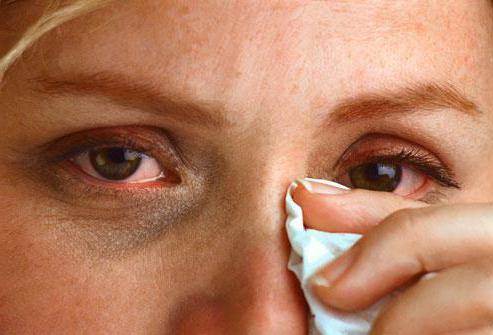 аллергия на халву как проявляется