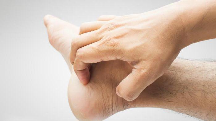 покраснение и зуд на руках и ногах лечение