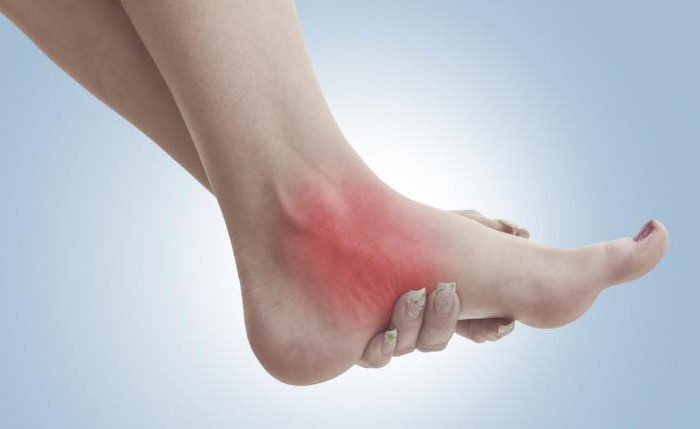 голеностопный сустав опухает и болит как лечить