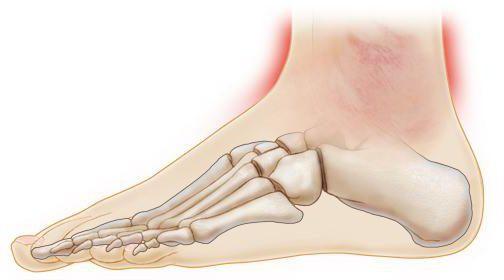 голеностопный сустав опухает и болит как лечить симптомы
