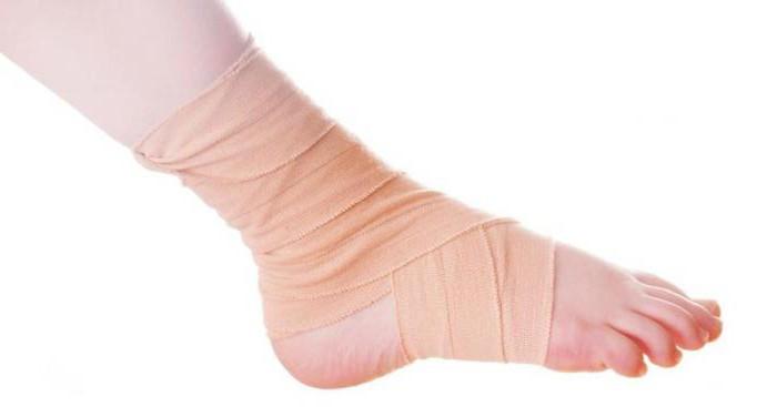 опухоль голеностопного сустава как лечить и снять боль