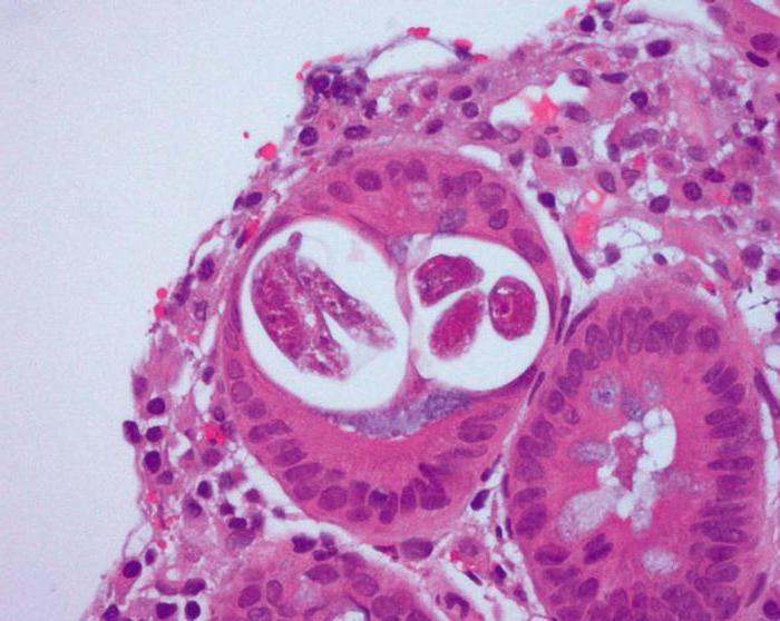 Стронгилоидоз симптомы