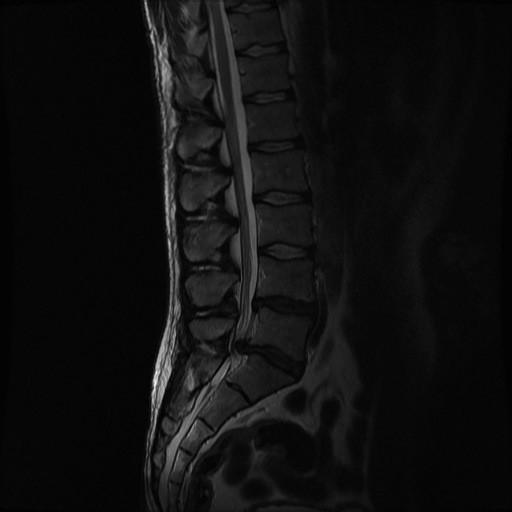 синдром поражения конского хвоста