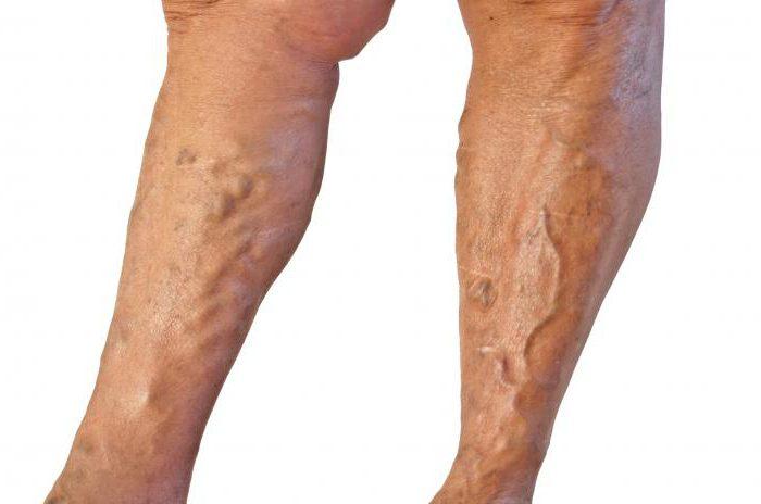 как избавиться от сосудистой сетки на ногах