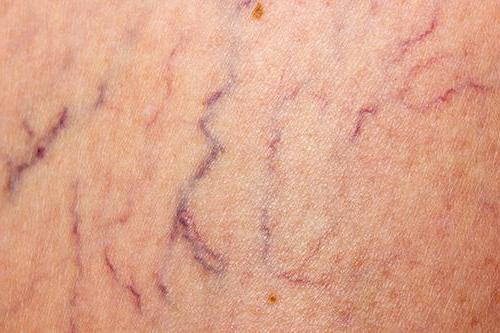 лечение венозной сетки на ногах как избавиться