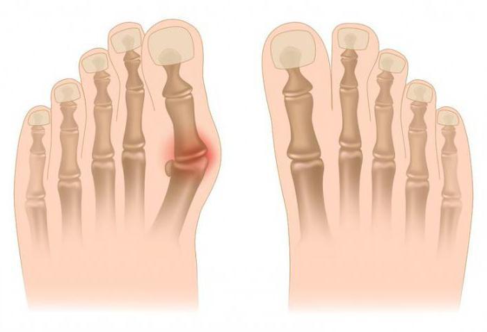 Крем от шишек на больших пальцах ног цена