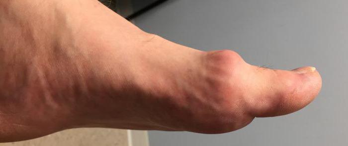 Крем от шишек на больших пальцах ног акулий жир цена