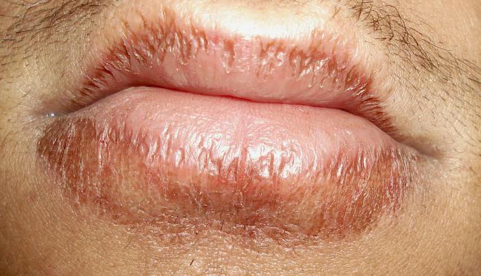 Болезни губ фото и названия