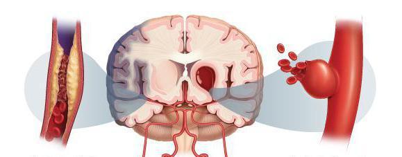 предвестники геморрагического инсульта