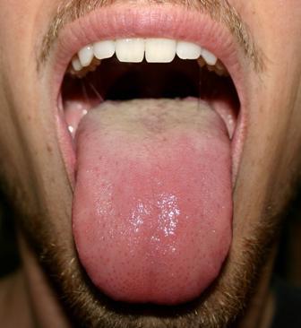 Почему появляются трещины на языке и как их лечить