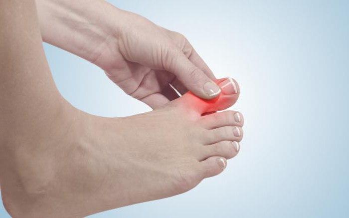 Чем снять боль в косточке на ноге