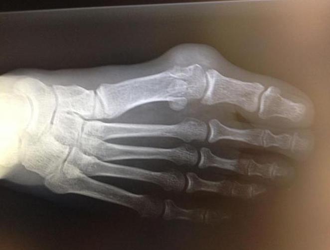 К какому врачу обратиться с косточкой на большом пальце ноги