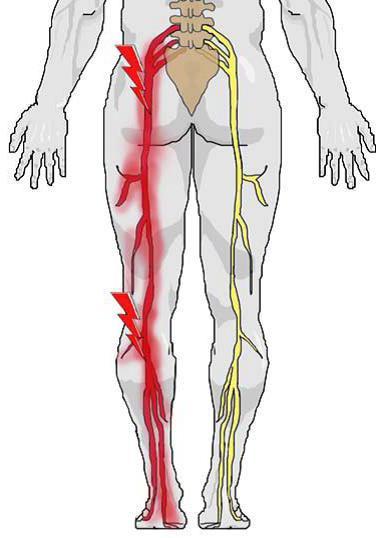 ишиалгия симптомы и лечение