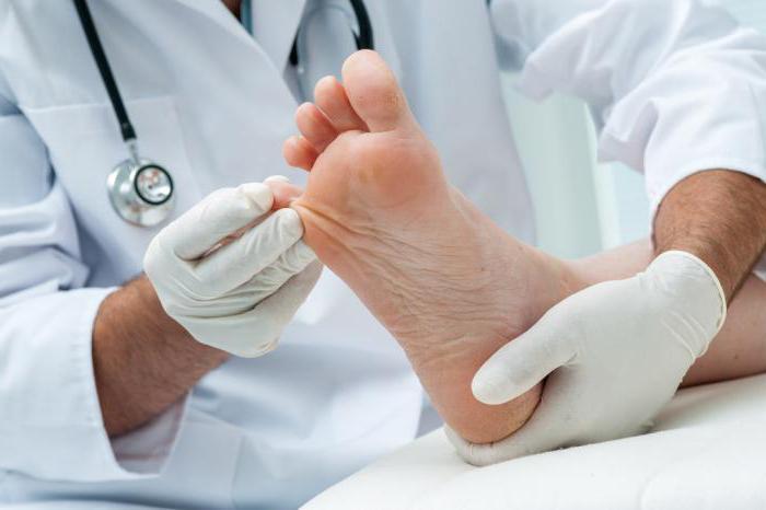Болит палец при грибке ногтя причины