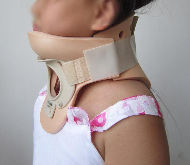 перелом шейного позвонка лечение