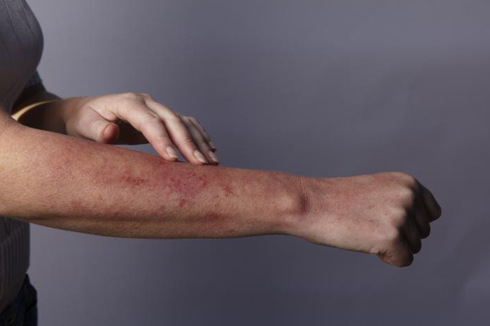 Аллергия сыпь на теле