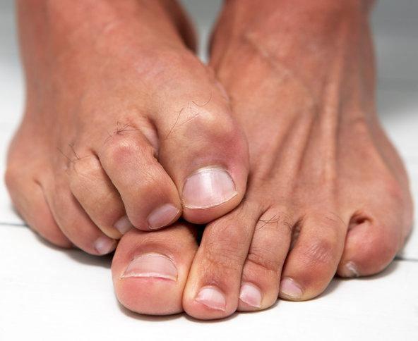 Грибок на ступнях ног современные методы лечения