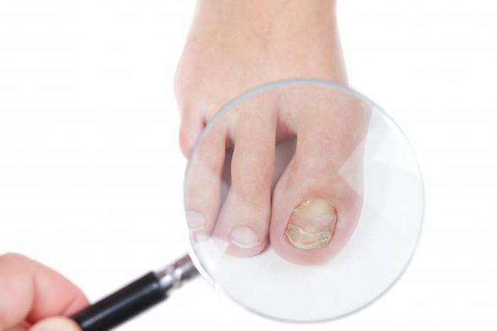 Купить от грибка на ногтях ног