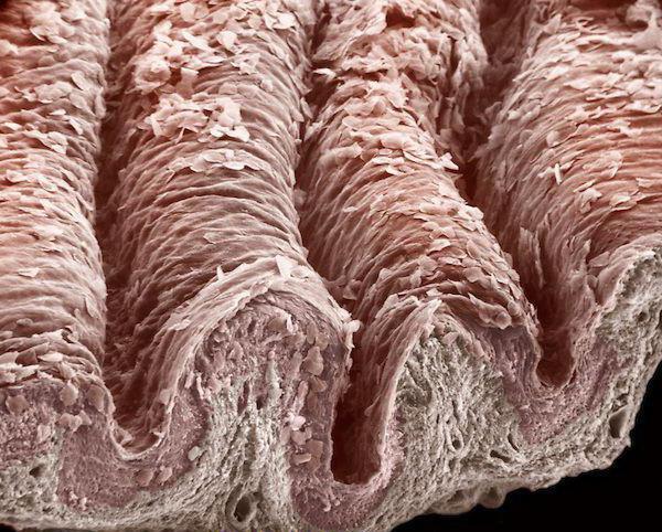 Escherichia coli как передается