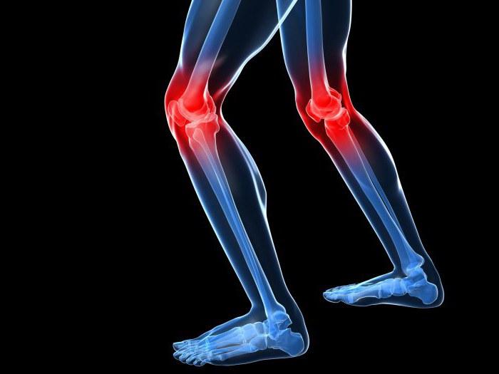 синовит супрапателлярный бурсит коленного сустава