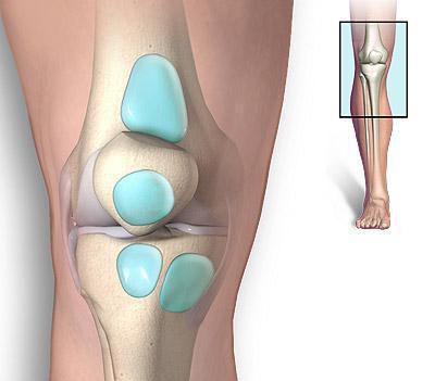 супрапателлярный бурсит коленного сустава лечение