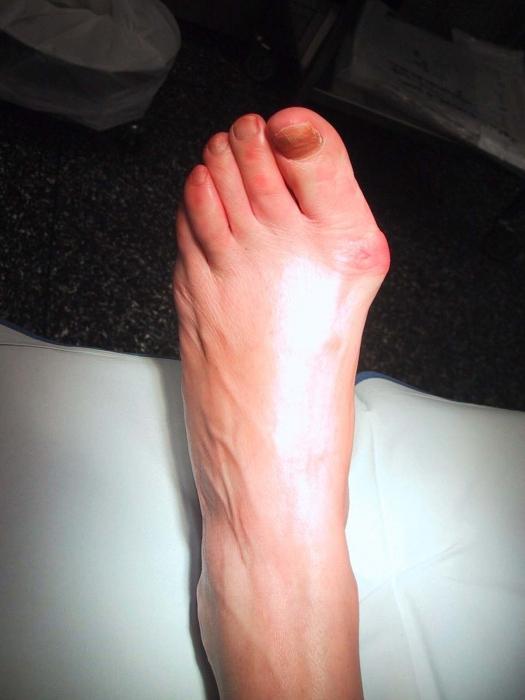 Растущая косточка на ноге: причины, симптомы, лечение