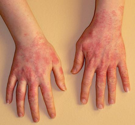 аллергия после лейкопластыря